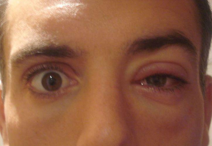 La conjuntivitis es uno de los padecimientos oftalmológicos más comunes. (Tomás Álvarez/SIPSE)