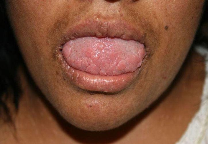 La causa de la enfermedad de Heck, además de la infección viral por VPH, intervienen la marginación, la desnutrición y los factores genéticos, lo que hace que más vulnerables al contagio algunas comunidades del sur y oriente del Estado. (elsevier.es)