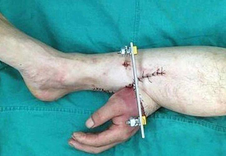 La cirugía de reinserción de la mano tardó unas diez horas. Al paciente le espera un largo proceso de rehabilitación. (expressen.se)