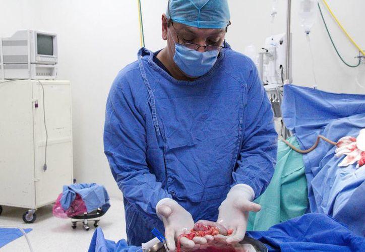Andrés Bazán Borges, con 26 años de trayectoria médica, fue el primer yucateco en realizar trasplantes en México y el extranjero. (SIPSE)