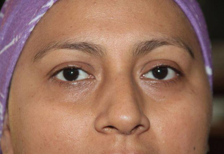 Le detectan cáncer de mama en la etapa 4 por mal diagnóstico.  (Julián Miranda/SIPSE)