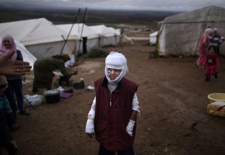 Abdullah Ahmed, de 10 años que sufrió quemaduras en un bombardeo gubernamental en la aldea siria de Atmeh. (Agencias)