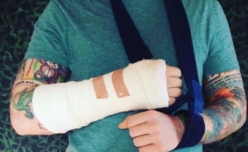 Ed Sheeran anunció haber sido víctima de un accidente de bicicleta. (Captura Instagram).