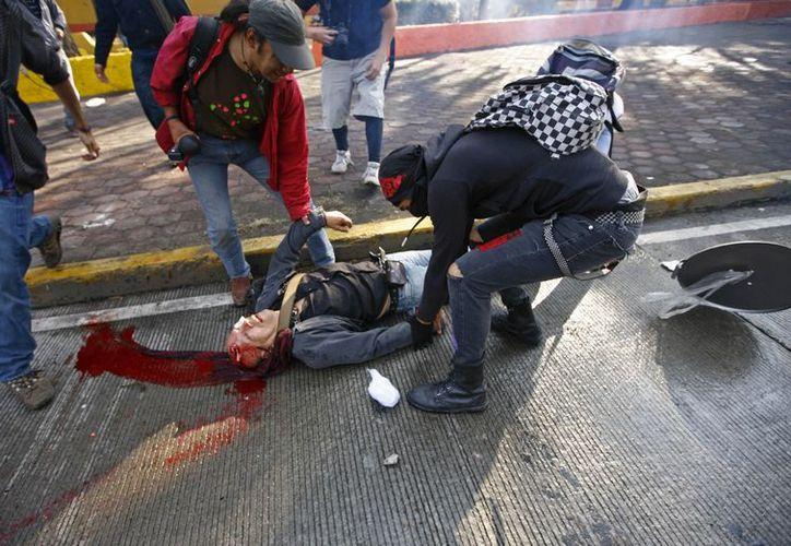 Uriel Sandoval presenta fractura en la nariz y daño ocular y se encuentra en urgencias. (Agencias)