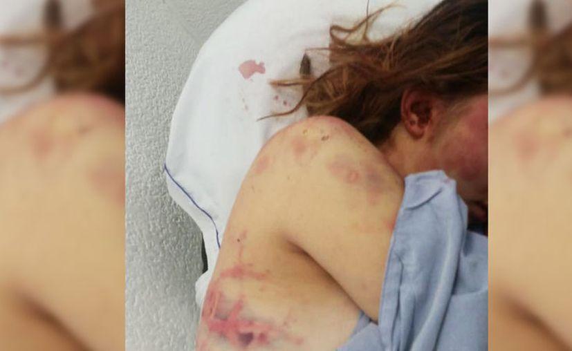 Las lesiones de la joven son de consideración. (Redes sociales)