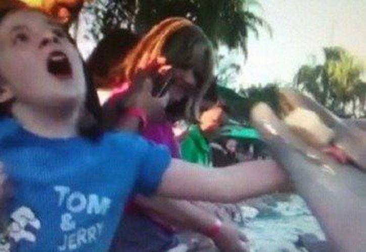 La niña, Jillian Thomas, La niña sufrió tres heridas en la mano. (www.lavanguardia.com)