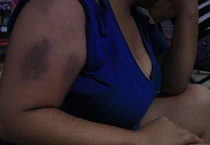 Las mujeres no solicitan castigo penal para sus agresores. (Harold Alcocer/SIPSE)