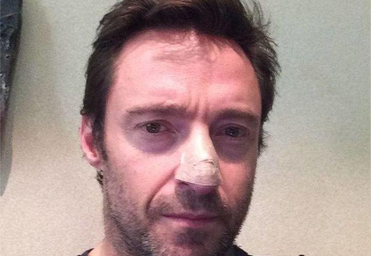 Esta es la foto que Hugh Jackman publicó en Instagram informando del carcinoma canceroso que padece. (@RealHughJackman)