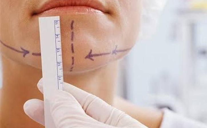 En Yucatán, se realizan, en promedio diario,  12 cirugías plásticas al día. La más recurrida es el aumento de busto. (SIPSE/Archivo)