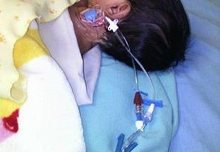 La pequeña Yahani de mes y medio de edad soportó dos operaciones.(Javier Ortiz/SIPSE)