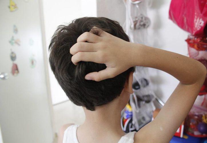 Un piojo hembra deposita 10 huevecillos por día, de donde salen las liendres, que se adhieren al cabello. (Jesús Tijerina/SIPSE)