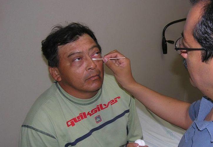 En Yucatán se registran casi once mil casos de conjuntivitis en lo que va del año. (Archivo/SIPSE)
