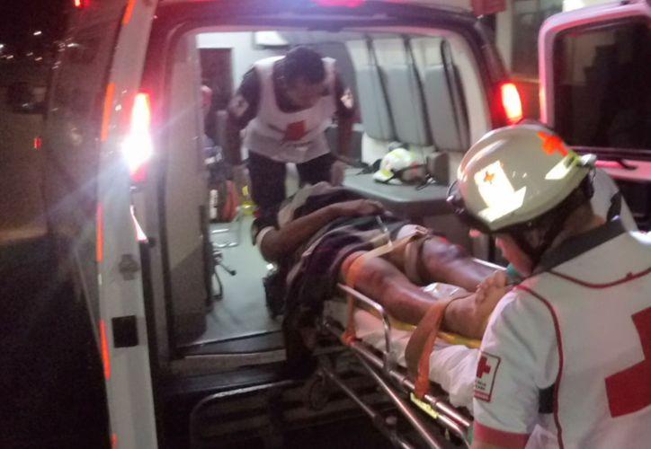El sujeto recibió un impacto de bala en la pierna, por lo que fue trasladado al Hospital General de Playa. (Foto: Redacción)