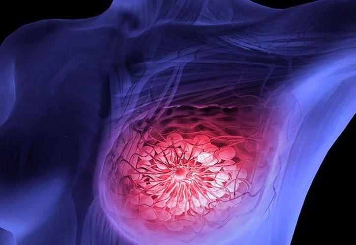 Una prueba en 21 genes llamada Oncotype Dx ha ayudado a guiar algunas decisiones post-cirugía. (vanguardia.com)