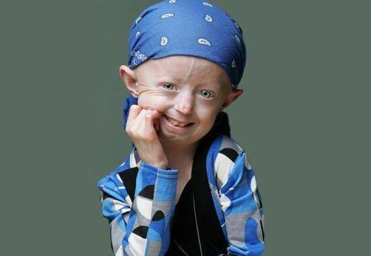 Hayley fue una activista de la Fundación para la Investigación de la Progeria. (facebook.com/OldBeforeMyTime)
