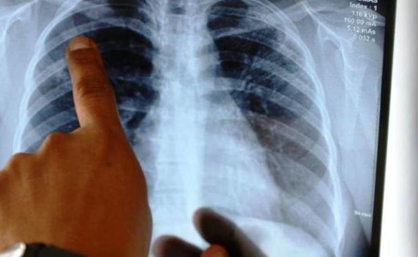 En el IMSS se detecta, en promedio, 60 casos nuevos por año de cáncer de pulmón. (Foto: contexto Internet)
