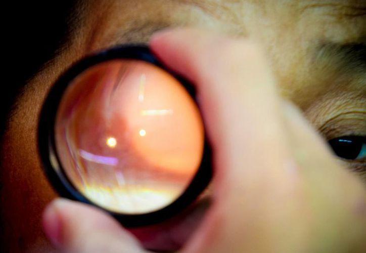 Los oftalmólogos realizarán las valoraciones médicas el 28 y 29 de julio. (Cortesía)
