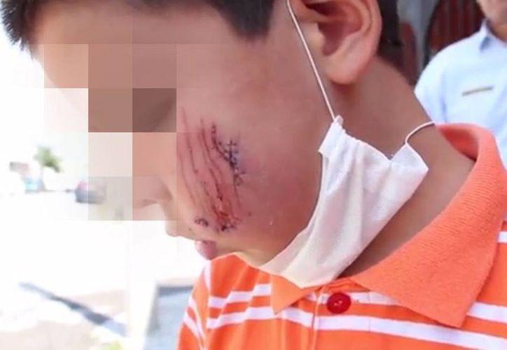 Imagen del menor después del ataque de un Pitbull cerca de su casa en Saltillo, Coahuila. (Captura de pantalla de YouTube)