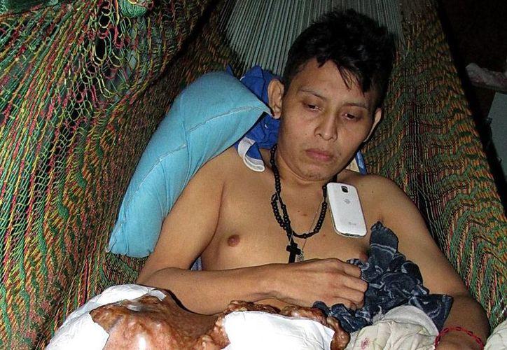 Carlos Fernando Baas vive desde hace cinco años con la pesadilla de un tumor que ahora lo tiene incapacitado. (Emmanuel Palomo/SIPSE)