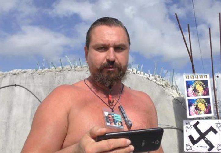 Aleksei tendrá secuelas permanentes que lo obligan a llevar un proceso de rehabilitación. (Foto: Internet)