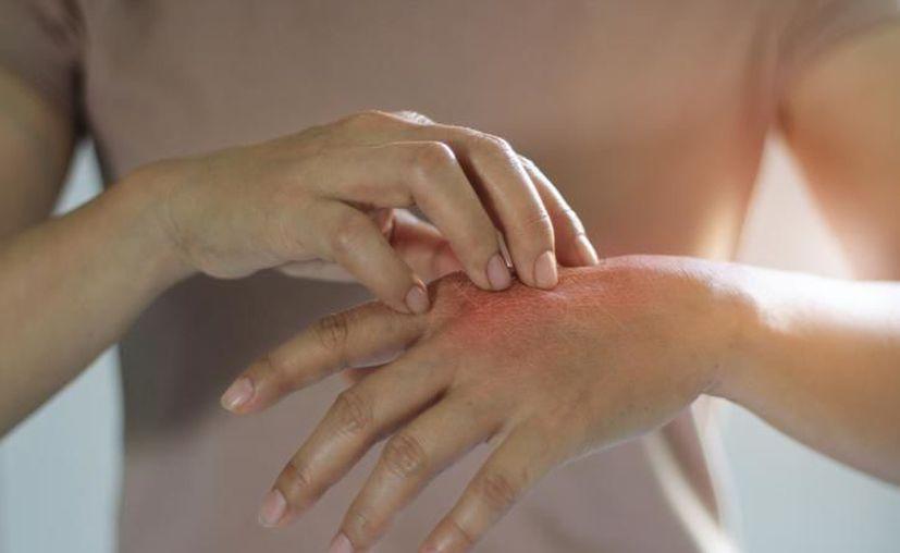El virus de la culebrilla puede ser contagioso de persona a persona. (Archivo/Sipse)