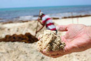 Detectan y atienden 33 casos de alergia por sargazo en Playa