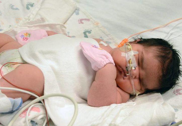 La imagen proporcionada por el Hospital Infantil Colorado muestra a Mia Yasmín García a un día después de su nacimiento, en Alamosa, Colorado. (Agencias)