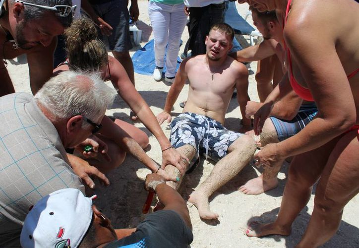 Un joven turista texano tuvo la mala suerte de pisar un bagre cuando salía del mar en Progreso. (Gerardo Keb/Milenio Novedades)