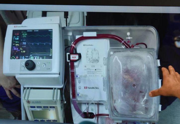 Tras verificar que el corazón se encontraba en buenas condiciones fue colocado en una máquina especial que mantiene los órganos funcionando. (Dean Lewins / AAPIMAGE)