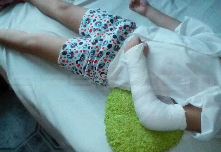 La niña tendrá inmovilizado el brazo durante más de un mes. (SIPSE)