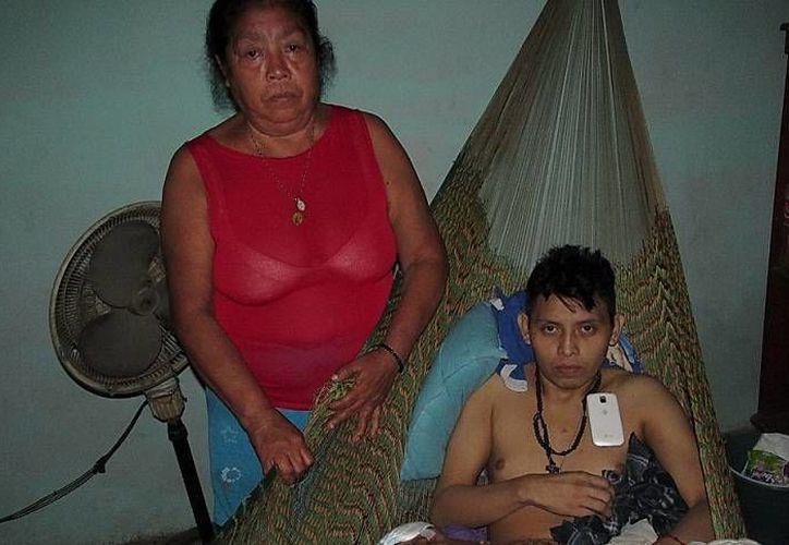 Carlos Baas Chan será operado de hoy a mañana para extirparle el enorme tumor que lo mantiene postrado en una hamaca, en su casa de Kanasín. (Emmanuel Palomo/SIPSE)