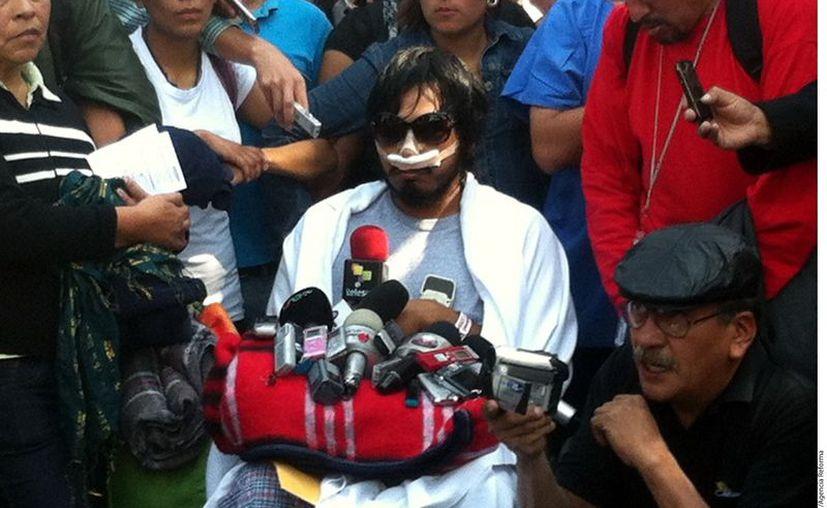 Uriel Sandoval díaz, estudiante de la UACM que fue herido en los enfrentamientos del 1 de diciembre en San Lázaro. (Agencia Reforma)