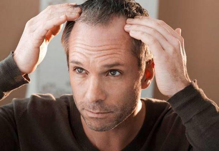 Las entradas en la cabellera no afectarían el riesgo de padecer enfermedades coronarias. (datamed.com.do)
