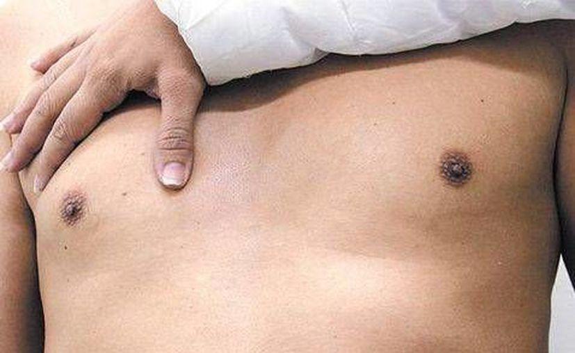 Aunque el cáncer de mama es mucho menos común en hombres, resulta igual de peligroso. (Contexto/ Milenio Digital)