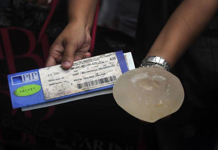 Los implantes PIP fueron prohibidos en Argentina en 2010. (Archivo/Agencias)