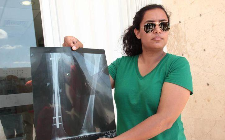Diana Maldonado, amiga de la joven baleada en Playa del Carmen denunció negligencia médica. (J. Acosta/ Milenio Novedades)