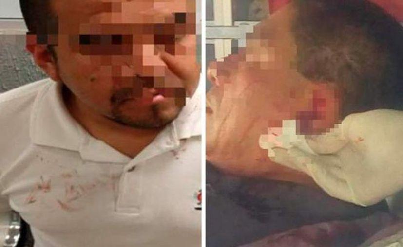 Los paramédicos lograron recuperar la oreja de la víctima. (Internet)