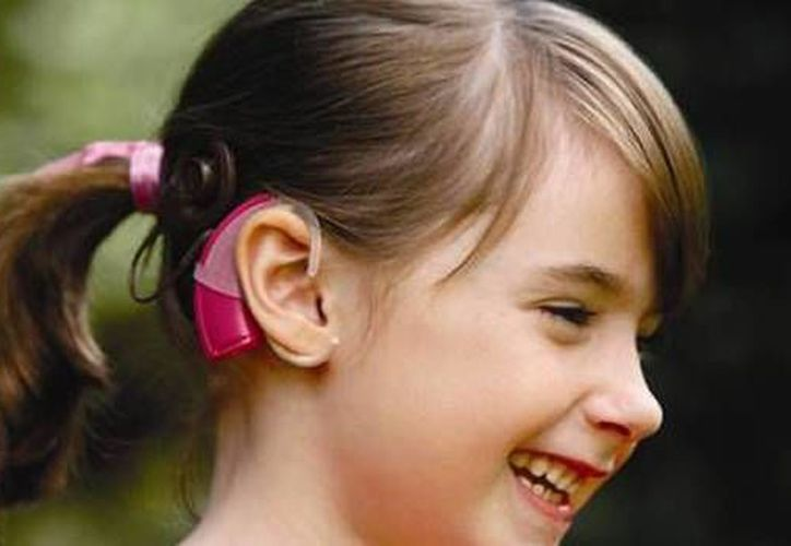El implante coclear es una ayuda tecnológica para el tratamiento de determinado tipo de sordera. (Foto de Contexto/Internet)