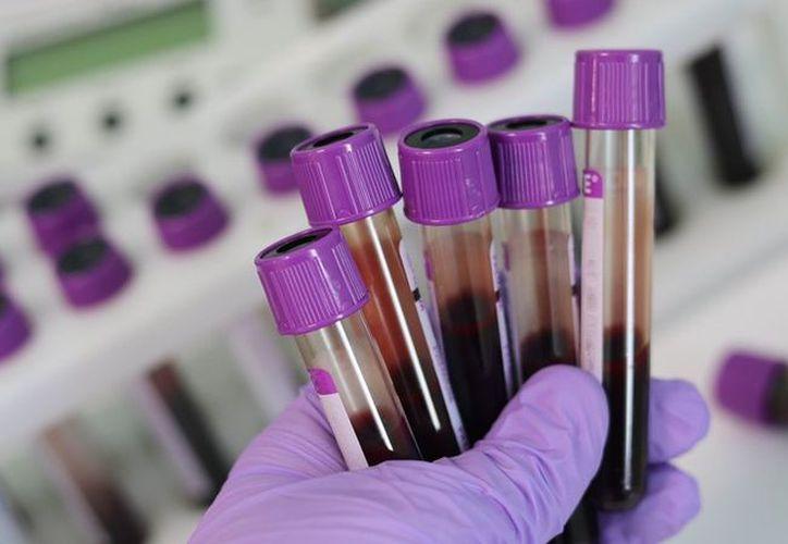 Este avance médico podría ayudar a dar los pacientes a un mejor tratamiento de la enfermedad. (Pixabay/ Imagen ilustrativa)