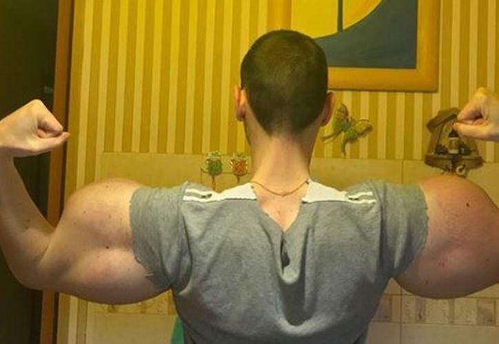 """El joven ruso detalló que había estado recostado durante dos días en su cama debido a los dolores y que, incluso, """"apenas"""" pudo pararse a """"trabajar"""" sobre sus hombros"""". (Instagram)"""