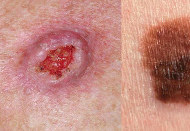 En la piel existe el melanoma maligno, una lesión cutánea que si no se atiende puede producir la muerte a corto plazo. (Archivo/Sipse)