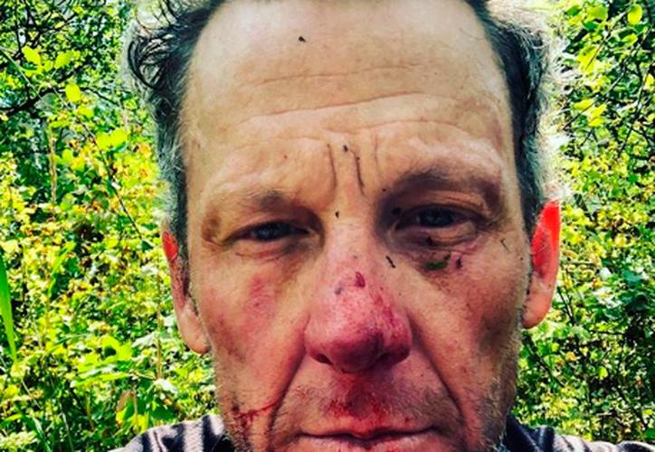 El famoso ciclista compartió su historia en redes sociales. (Instagram)