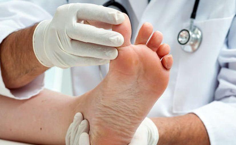 """El """"pie de atleta"""" es una de las principales consultas al dermatólogo. (Foto: Milenio Novedades)"""