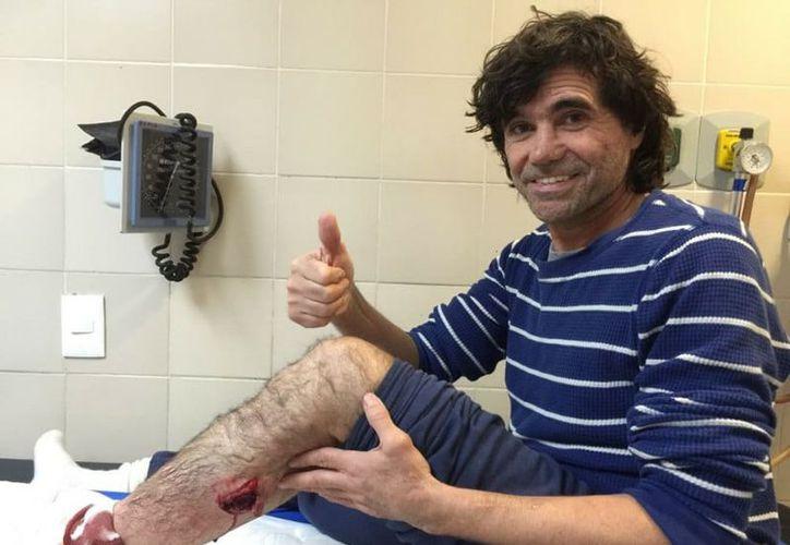 El veterano 'Glison' posó con su herida luego de que fuera atendido en la enfermería. (SIPSE)