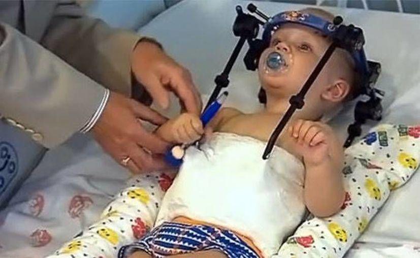 Los médicos asegura que Jackson Taylor tendrá una vida normal. (Captura de pantalla YouTube)
