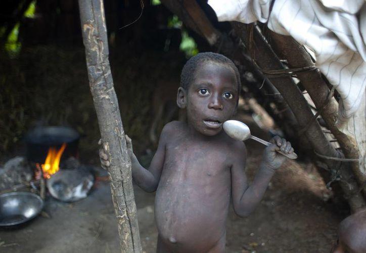 Los estómagos de los niños están tan inflados como el tamaño de sus cabezas y muchos se ven de la mitad de su edad. (Agencias)
