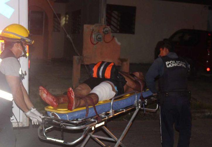 El sujeto presentaba tres punzadas en la pierna izquierda. (Redacción/SIPSE)