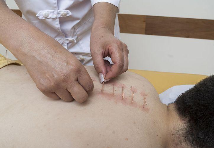 La acupuntura es una de las técnicas que aplica la medicina tradicional china. (www.medicinachina.cl)