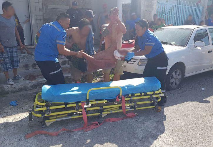 Los vecinos llamaron a los servicios de emergencia, quienes trasladaron al lesionado al Hospital General. (Redacción/SIPSE)