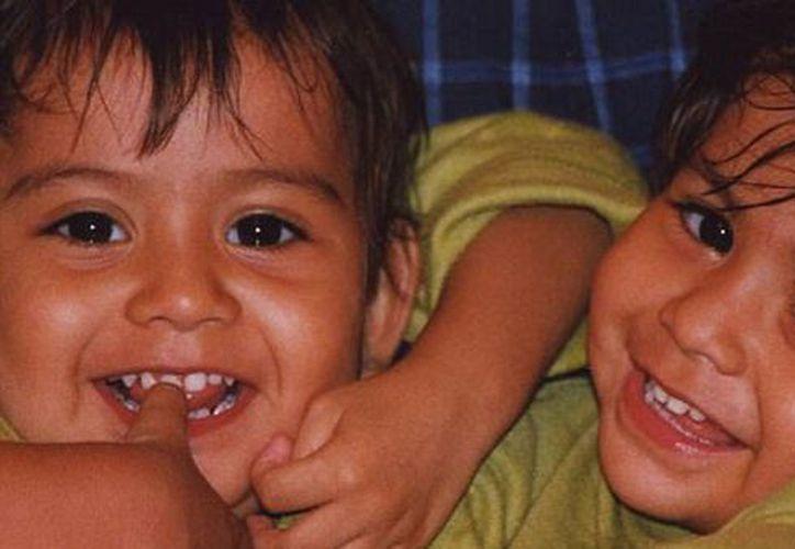 Las siamesas Lupita y Carmen han vivido 16 años unidas y ahora no quieren ser separadas. (Infobae)